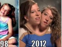 conjoined-twins-abby-and-brittany-hensel-1